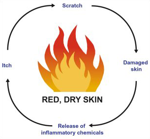 Eczema-Image-Scratch-Cycle